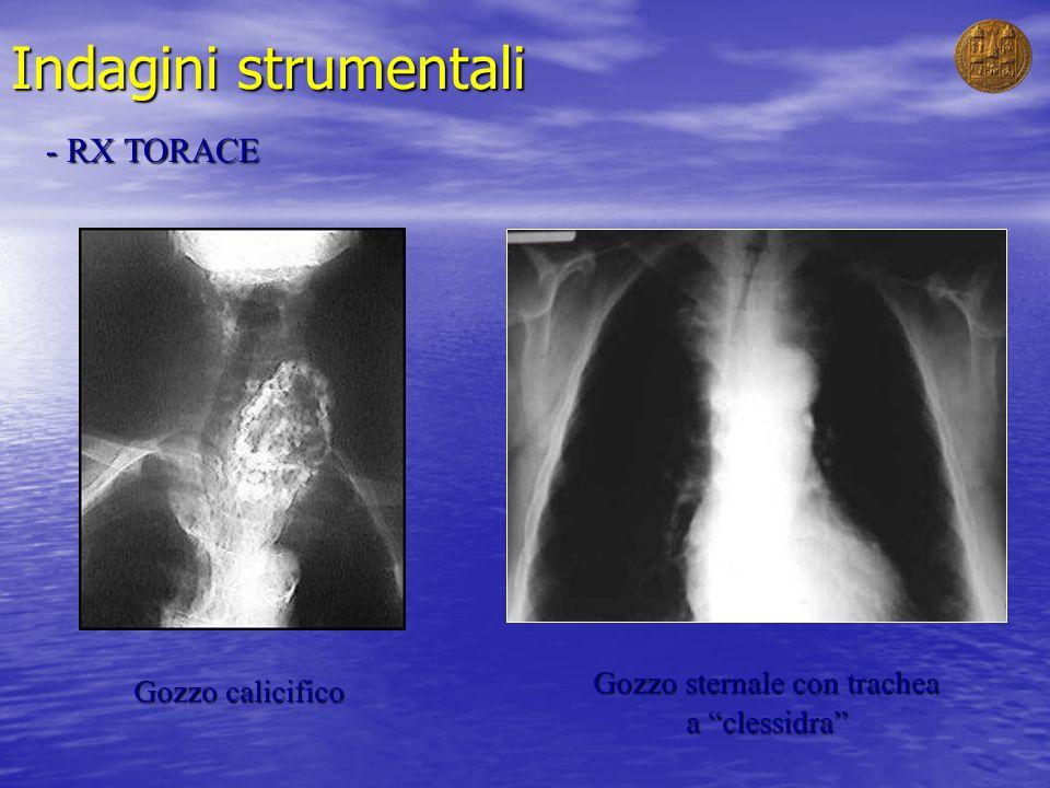 Gozzo sternale con trachea a clessidra