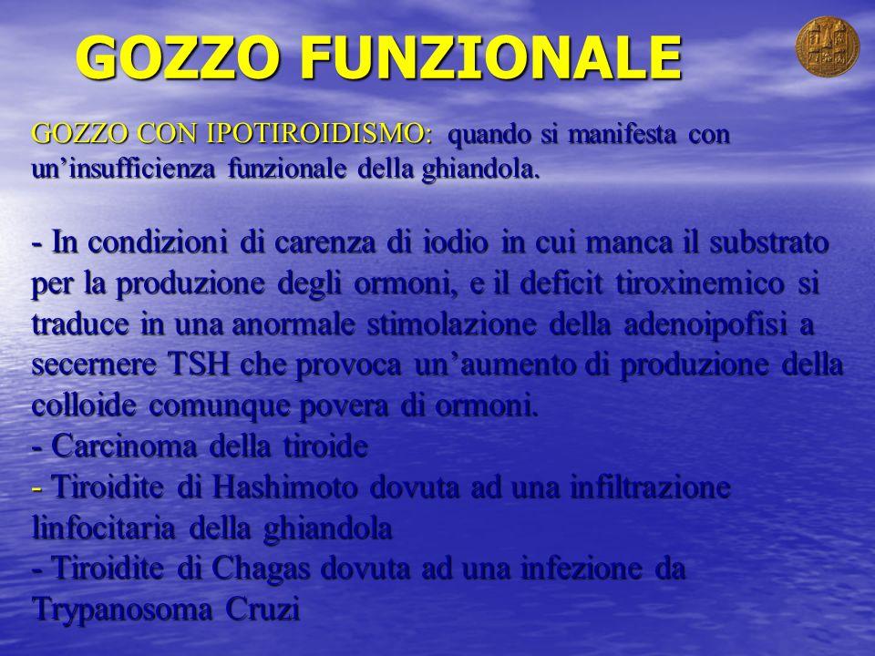GOZZO FUNZIONALE GOZZO CON IPOTIROIDISMO: quando si manifesta con un'insufficienza funzionale della ghiandola.