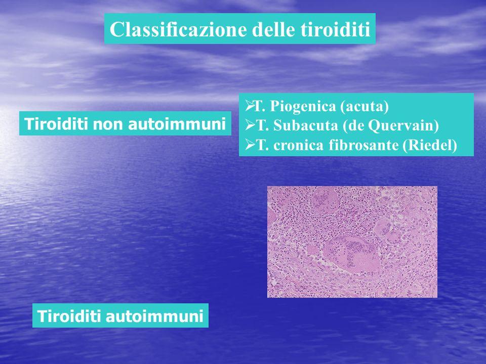 Classificazione delle tiroiditi