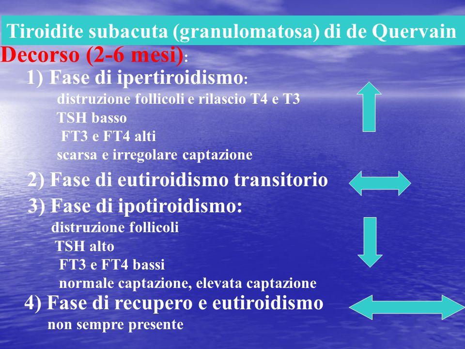 Decorso (2-6 mesi): Tiroidite subacuta (granulomatosa) di de Quervain
