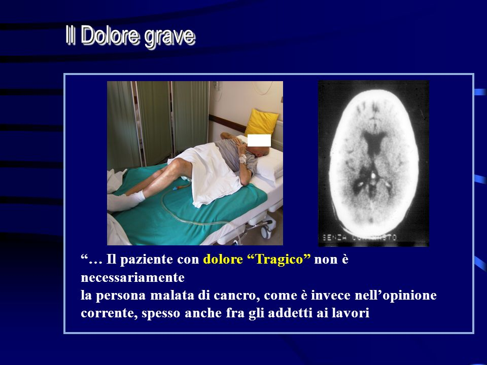Il Dolore grave … Il paziente con dolore Tragico non è necessariamente. la persona malata di cancro, come è invece nell'opinione.