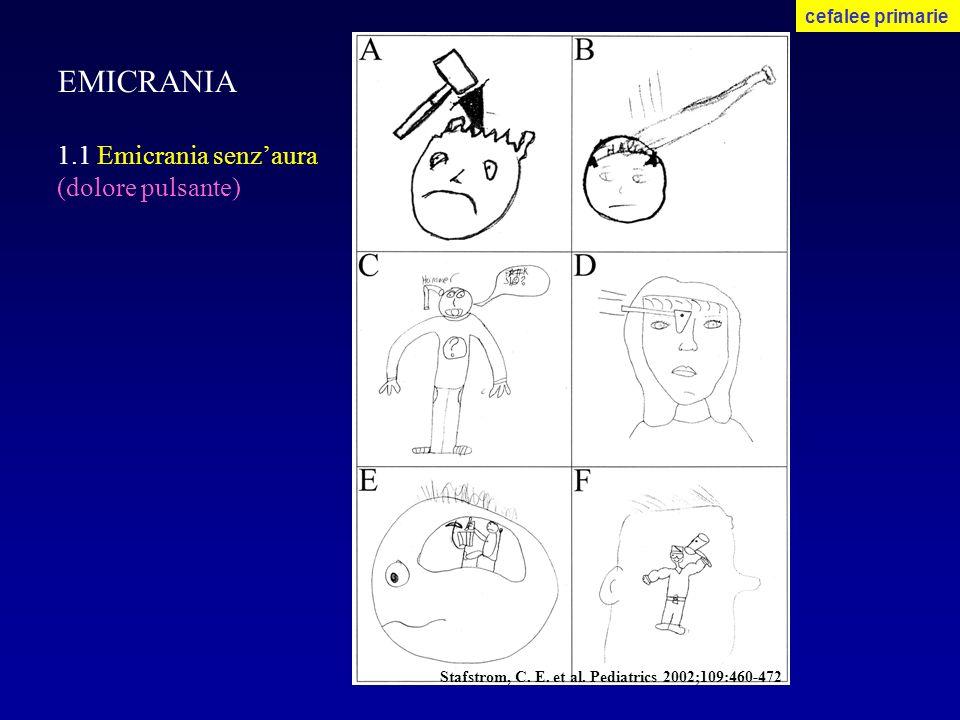 EMICRANIA 1.1 Emicrania senz'aura (dolore pulsante) cefalee primarie