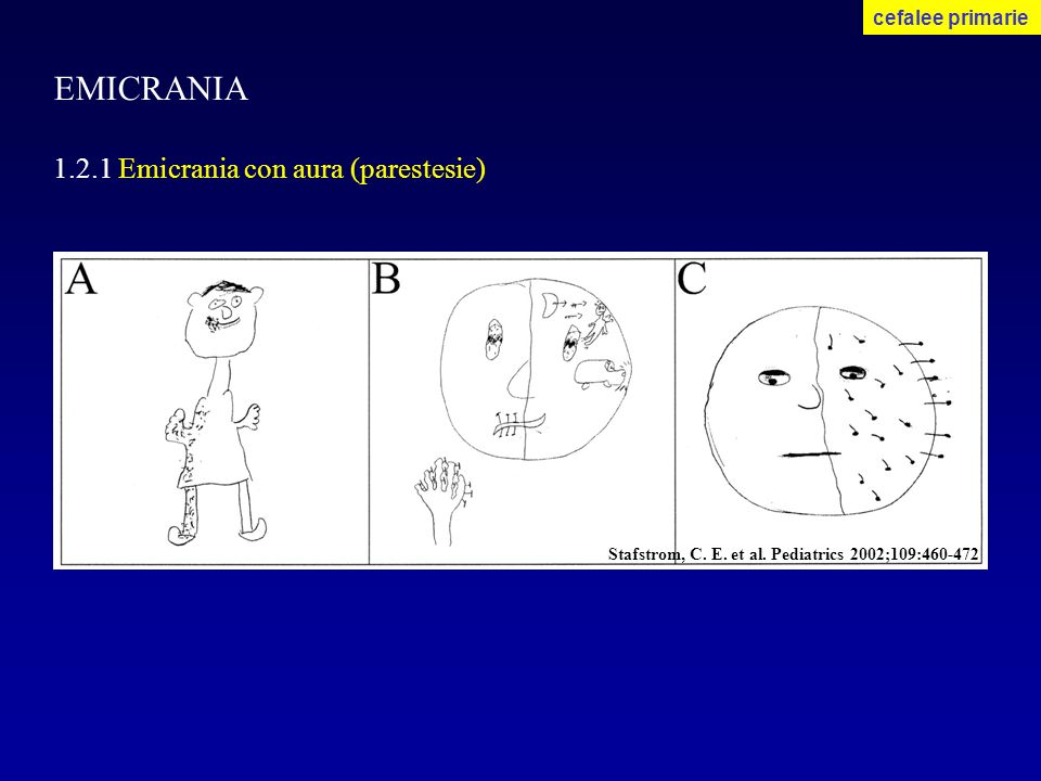 EMICRANIA 1.2.1 Emicrania con aura (parestesie) cefalee primarie