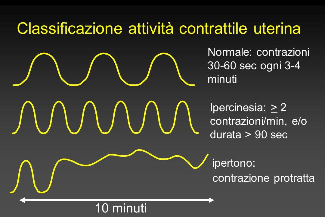 Classificazione attività contrattile uterina