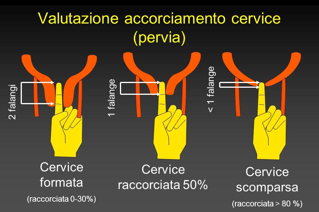 Valutazione accorciamento cervice (pervia)