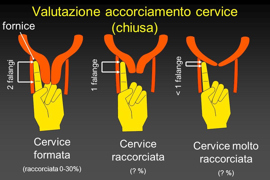 Valutazione accorciamento cervice (chiusa)