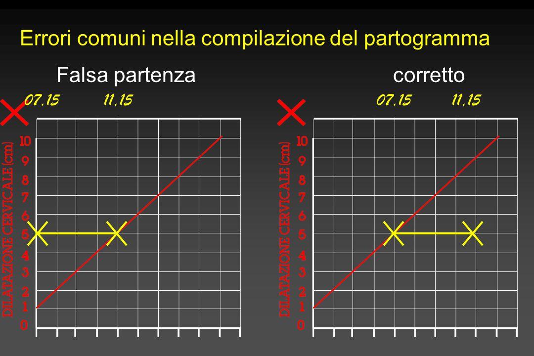 Errori comuni nella compilazione del partogramma