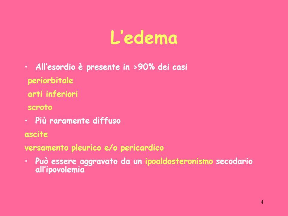 L'edema All'esordio è presente in >90% dei casi periorbitale