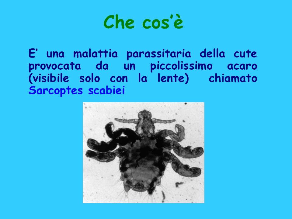 Che cos'è E' una malattia parassitaria della cute provocata da un piccolissimo acaro (visibile solo con la lente) chiamato Sarcoptes scabiei.