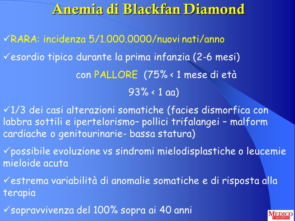 Anemia di Blackfan Diamond