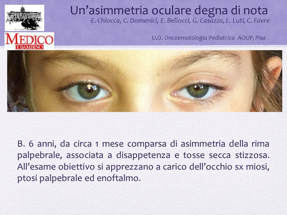 Un'asimmetria oculare degna di nota