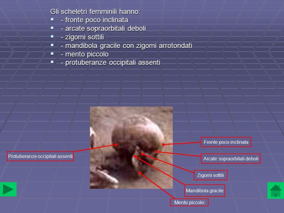 Gli scheletri femminili hanno: - fronte poco inclinata