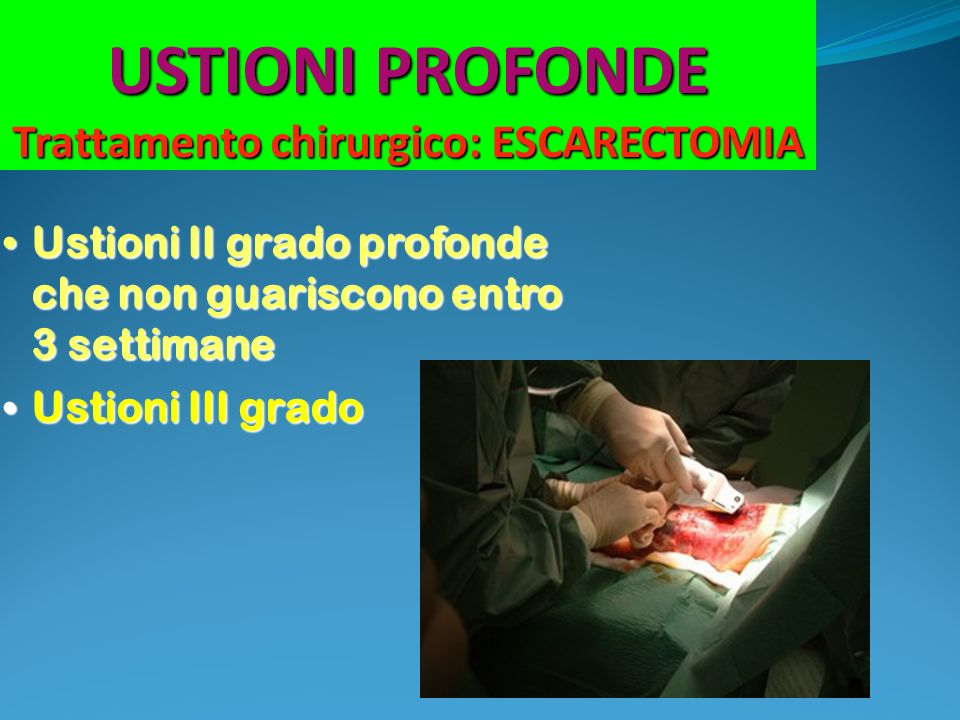 USTIONI PROFONDE Trattamento chirurgico: ESCARECTOMIA