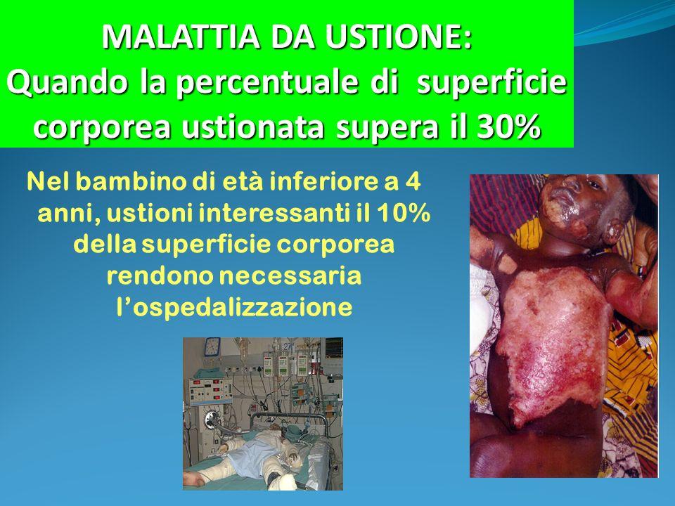 MALATTIA DA USTIONE: Quando la percentuale di superficie corporea ustionata supera il 30%