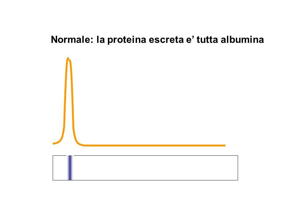 Normale: la proteina escreta e' tutta albumina