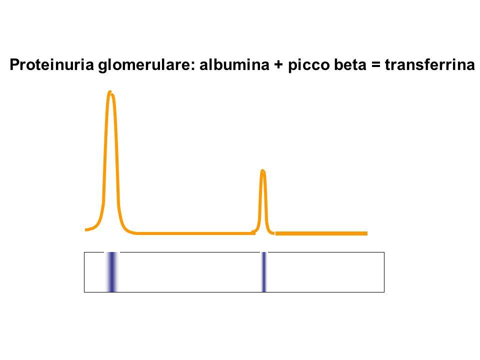 Proteinuria glomerulare: albumina + picco beta = transferrina