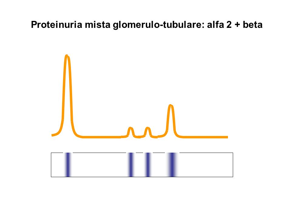 Proteinuria mista glomerulo-tubulare: alfa 2 + beta