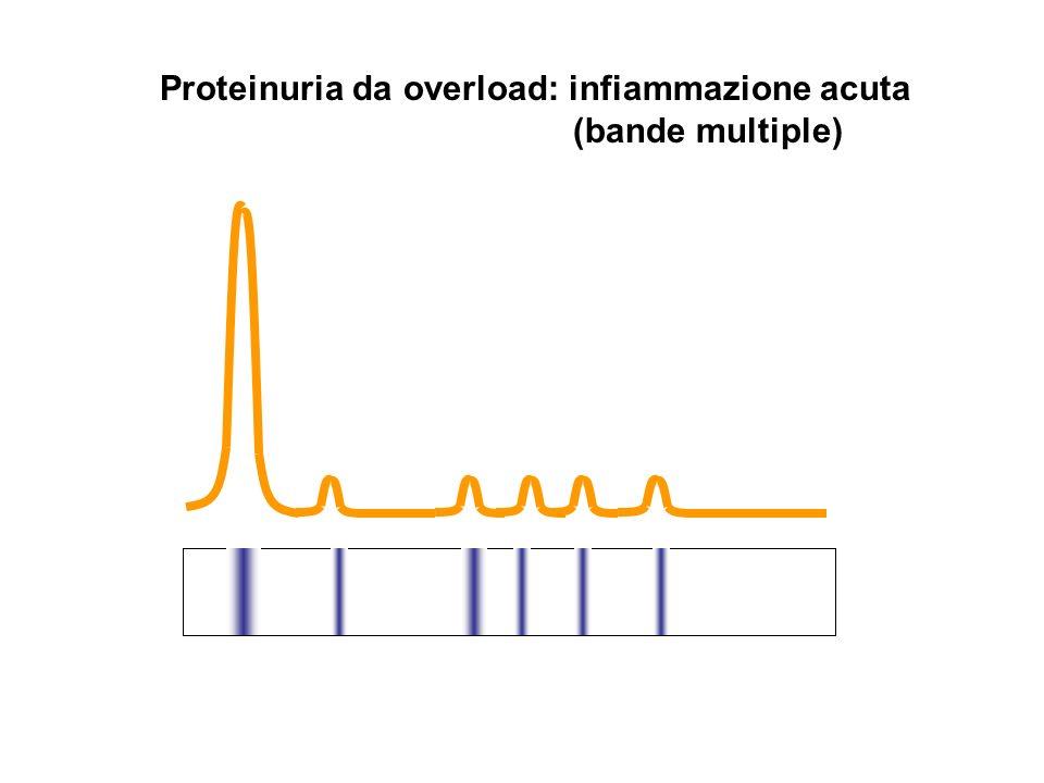 Proteinuria da overload: infiammazione acuta