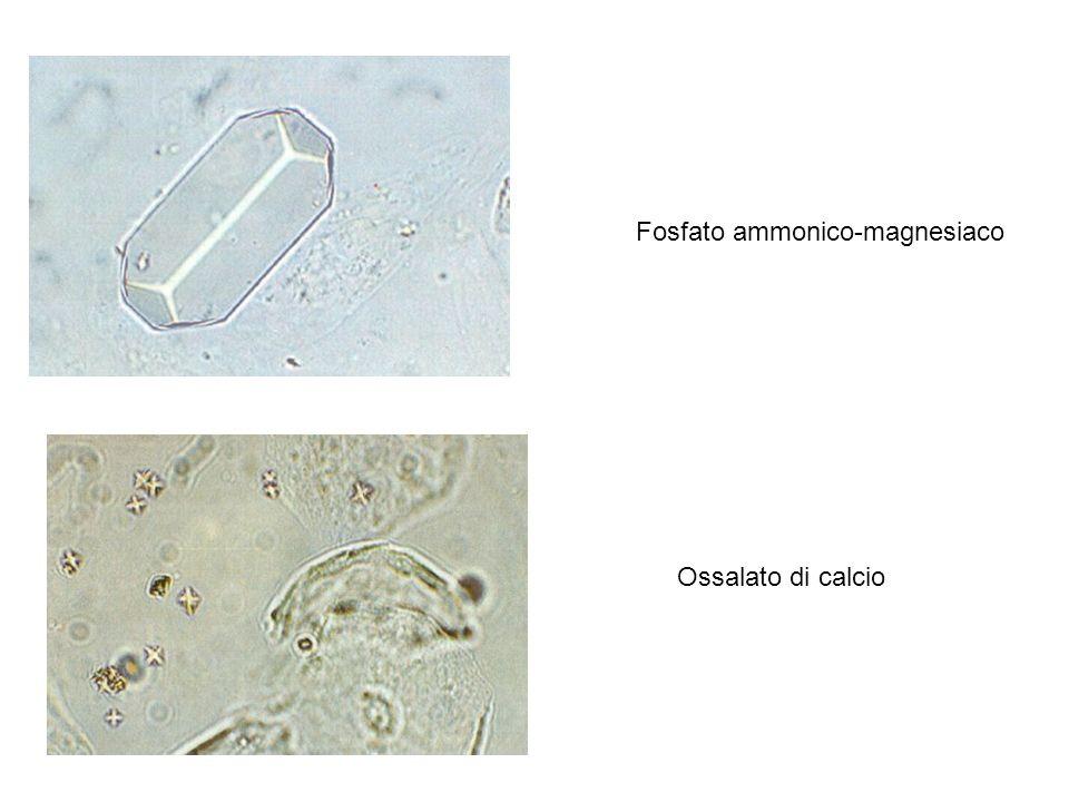Fosfato ammonico-magnesiaco