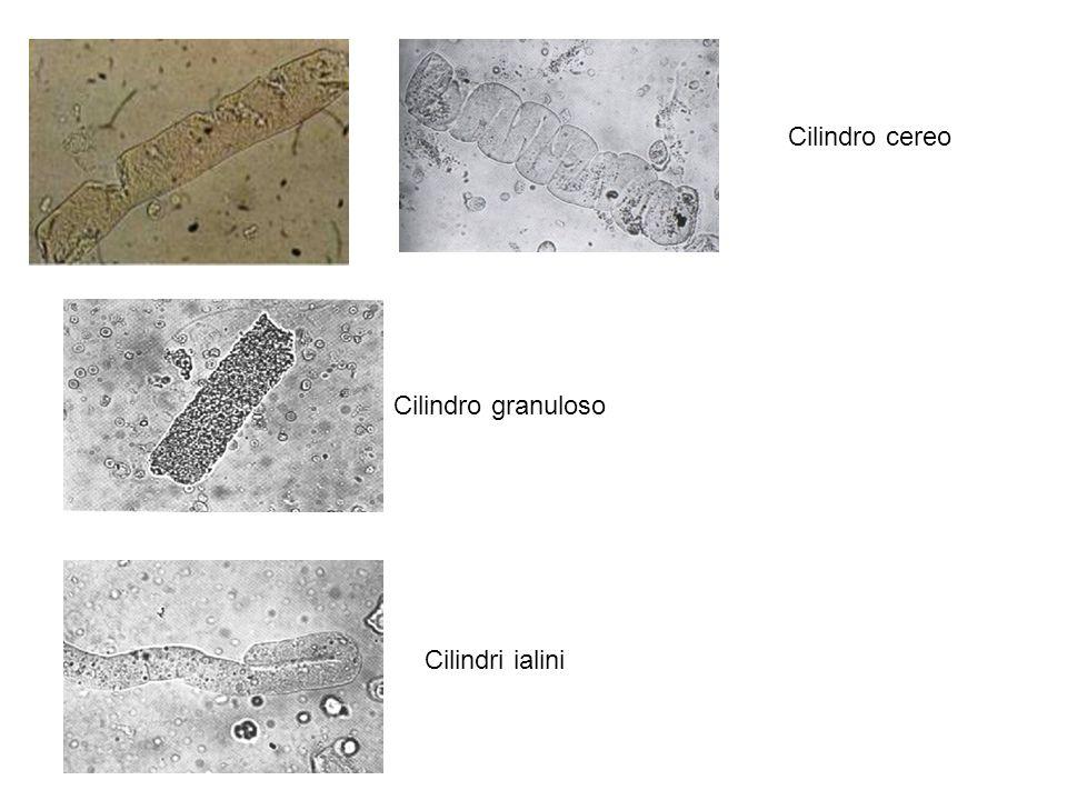 Cilindro cereo Cilindro granuloso Cilindri ialini