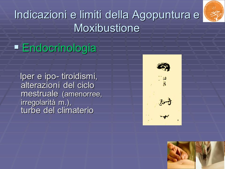 Indicazioni e limiti della Agopuntura e Moxibustione