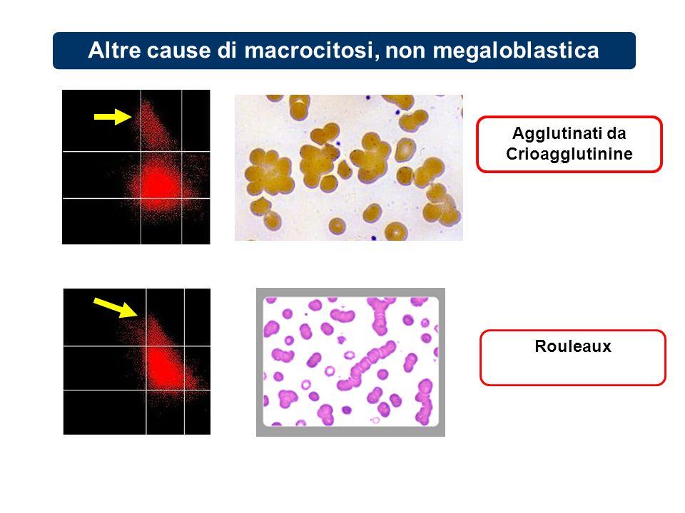 Altre cause di macrocitosi, non megaloblastica