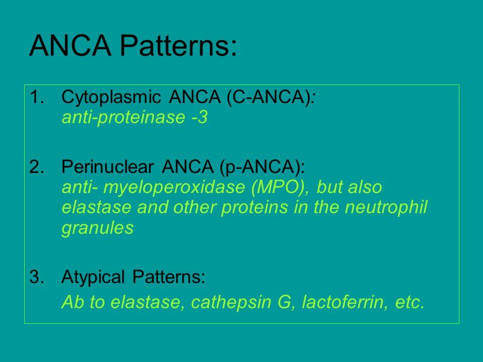 ANCA Patterns: Cytoplasmic ANCA (C-ANCA): anti-proteinase -3