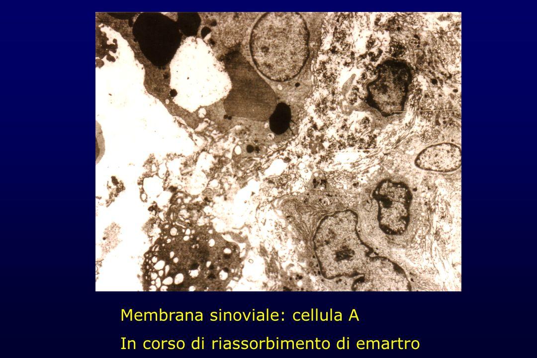 Membrana sinoviale: cellula A