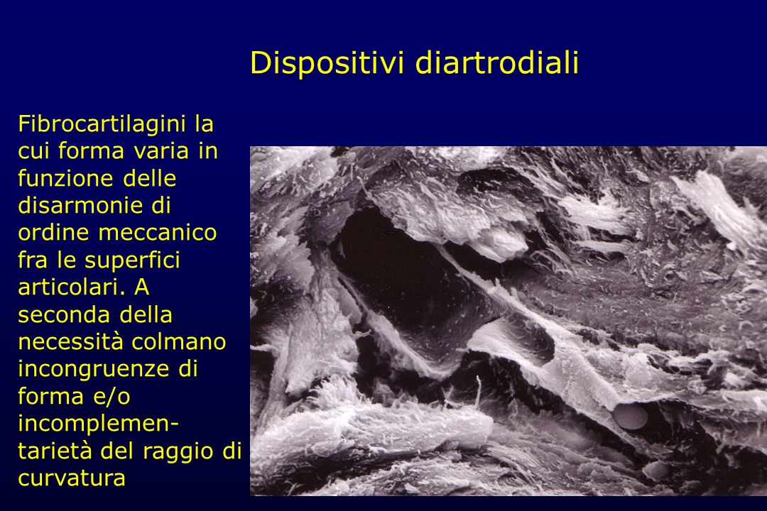 Dispositivi diartrodiali
