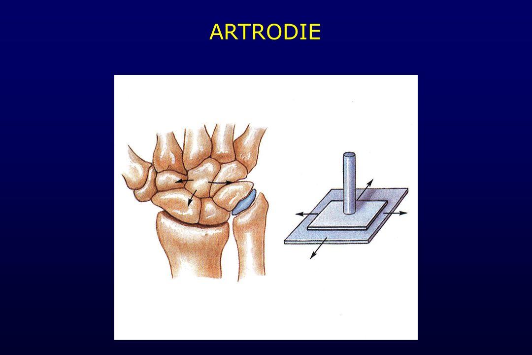 ARTRODIE