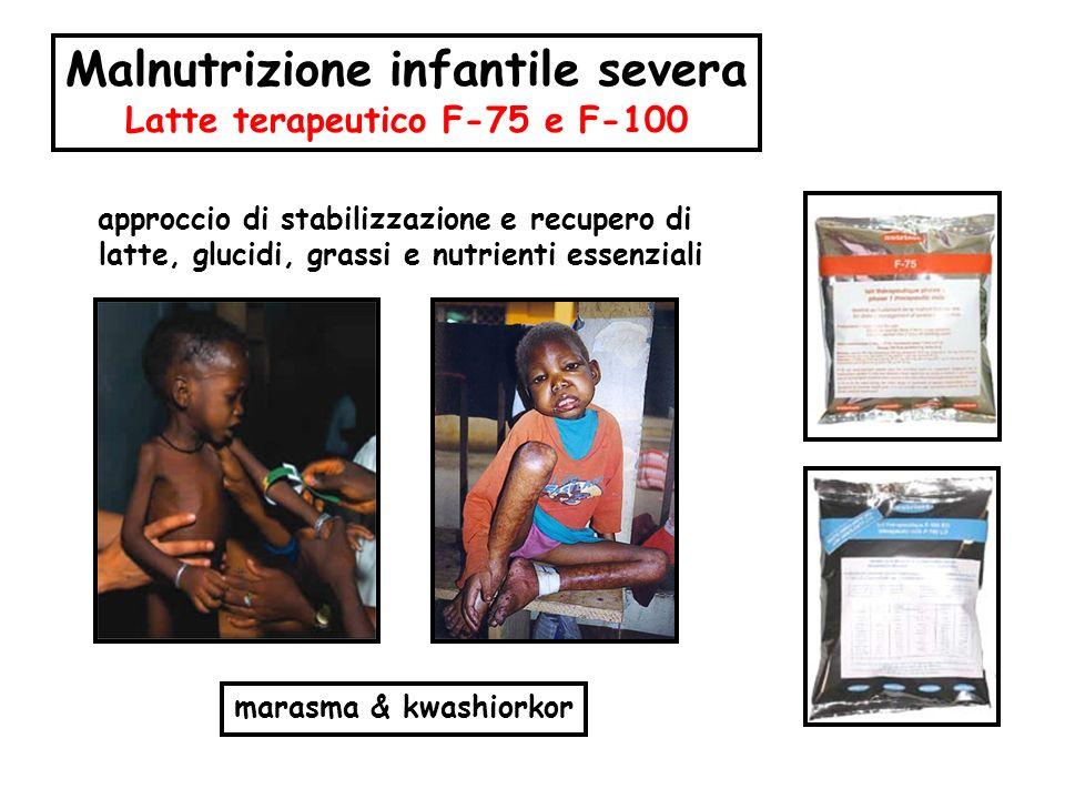 Malnutrizione infantile severa