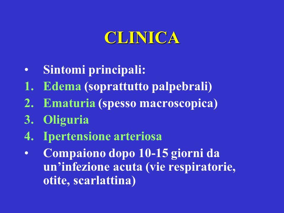 CLINICA Sintomi principali: Edema (soprattutto palpebrali)