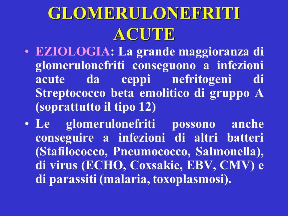 GLOMERULONEFRITI ACUTE