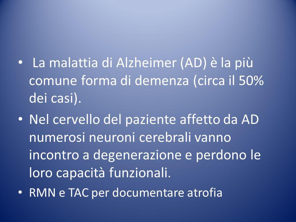 La malattia di Alzheimer (AD) è la più comune forma di demenza (circa il 50% dei casi).
