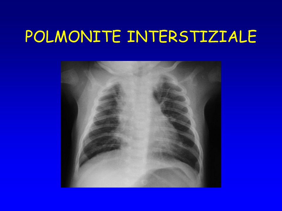 POLMONITE INTERSTIZIALE