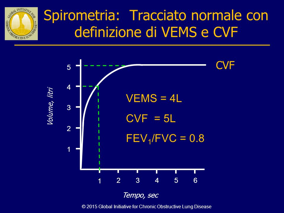 Spirometria: Tracciato normale con definizione di VEMS e CVF
