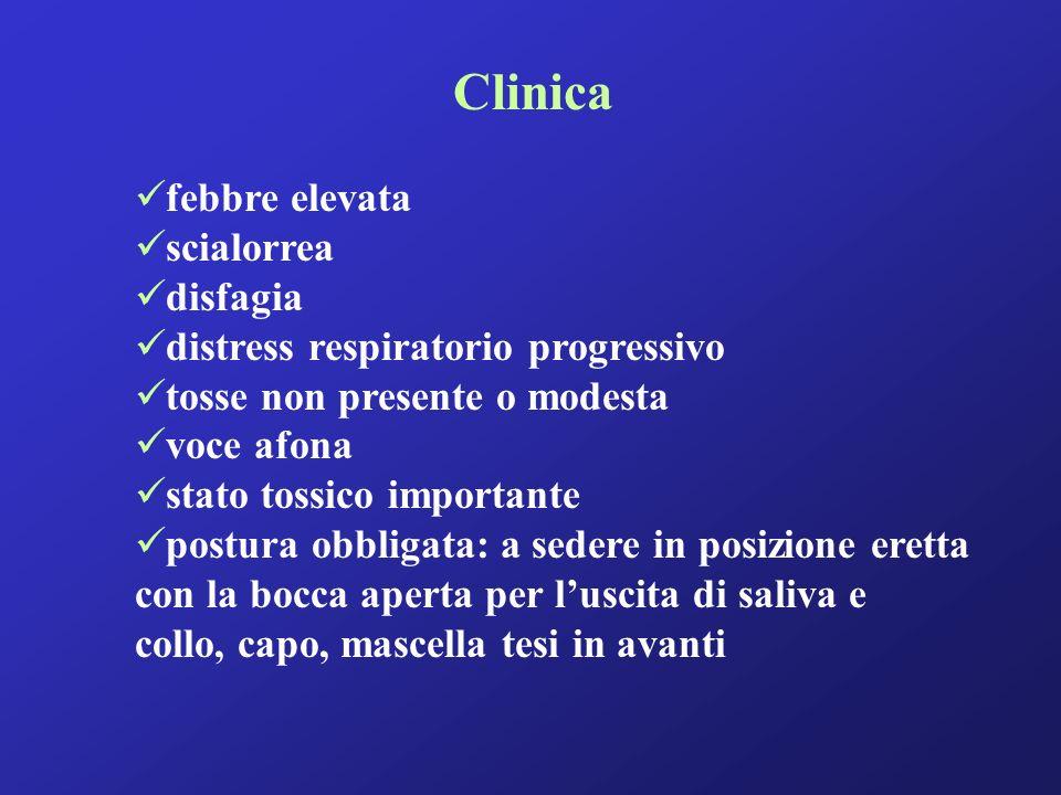 Clinica febbre elevata scialorrea disfagia