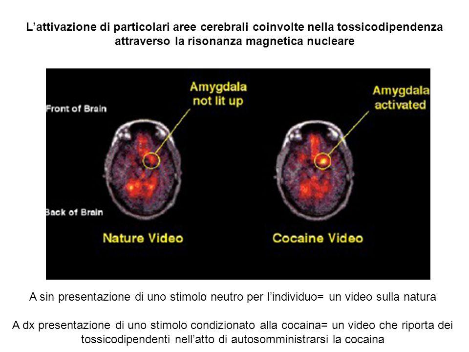 L'attivazione di particolari aree cerebrali coinvolte nella tossicodipendenza attraverso la risonanza magnetica nucleare
