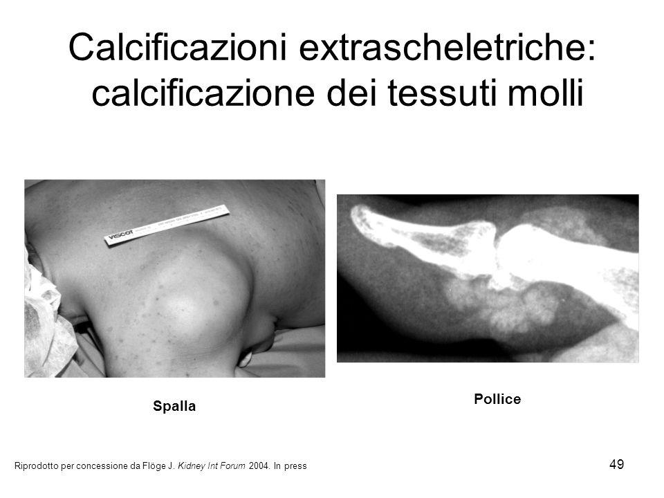 Calcificazioni extrascheletriche: calcificazione dei tessuti molli
