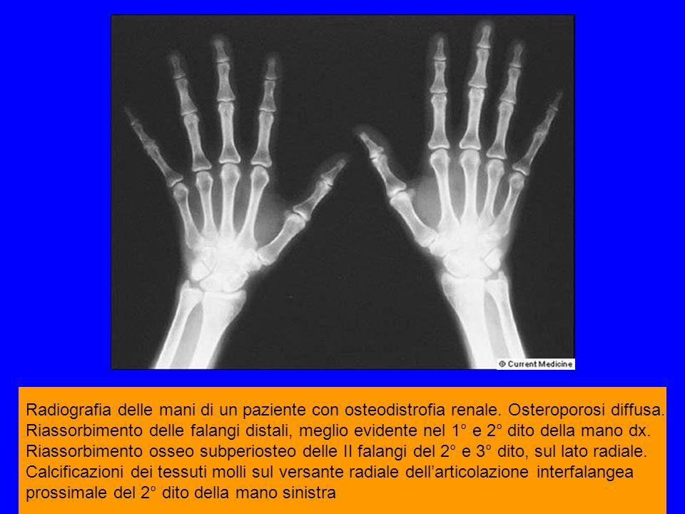 Radiografia delle mani di un paziente con osteodistrofia renale