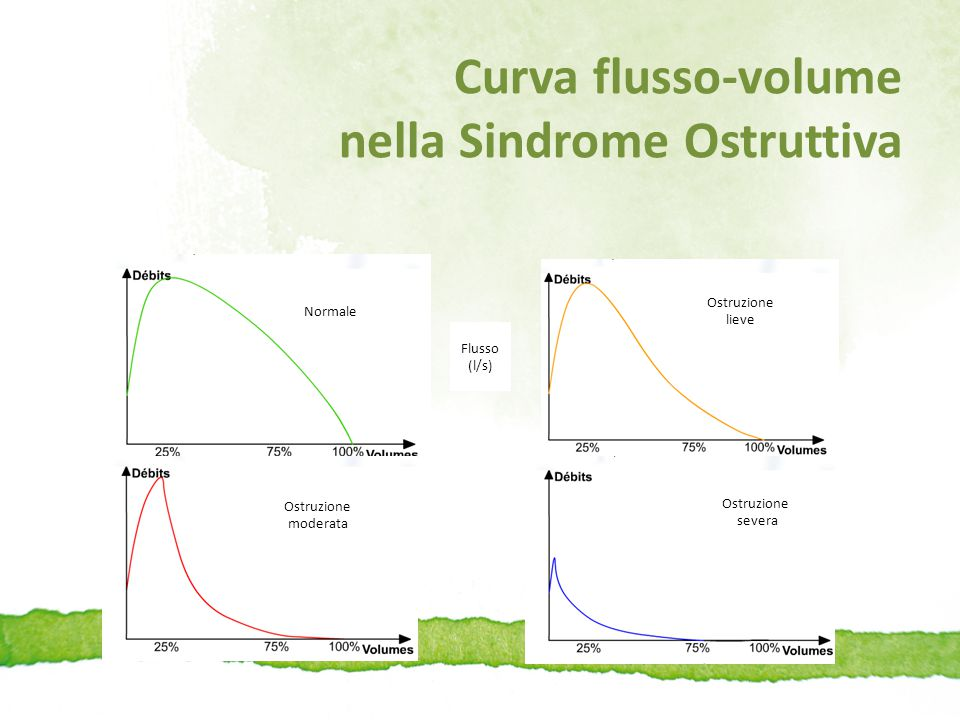 Curva flusso-volume nella Sindrome Ostruttiva