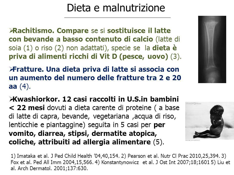 Dieta e malnutrizione