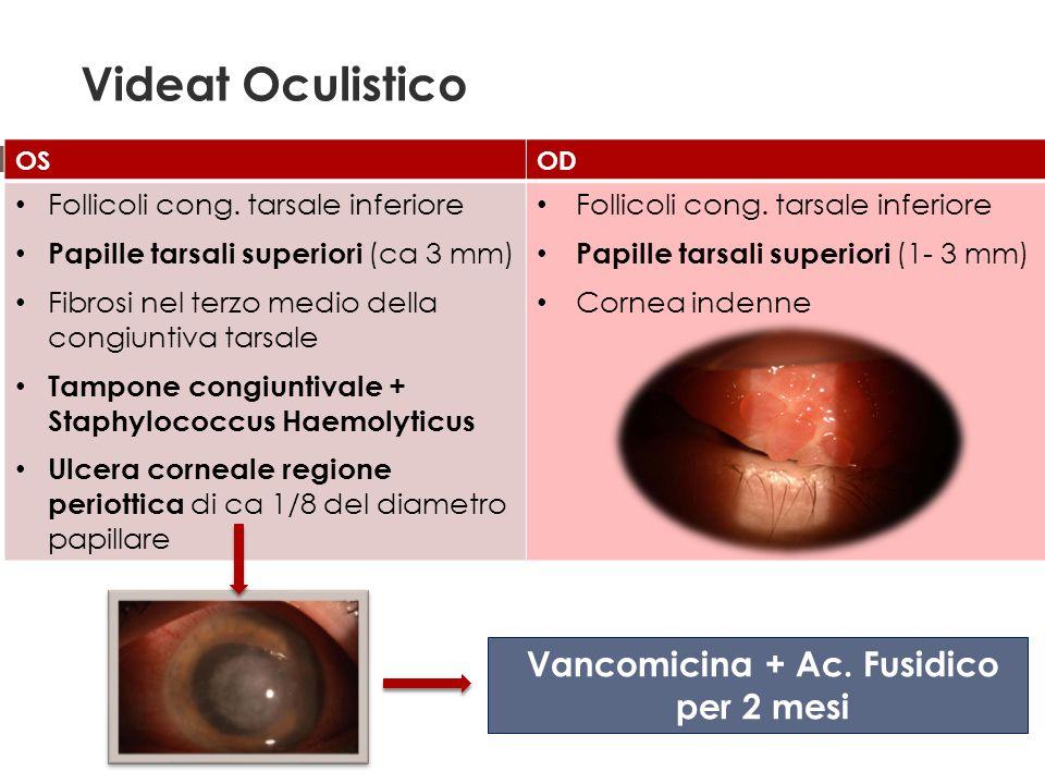Vancomicina + Ac. Fusidico