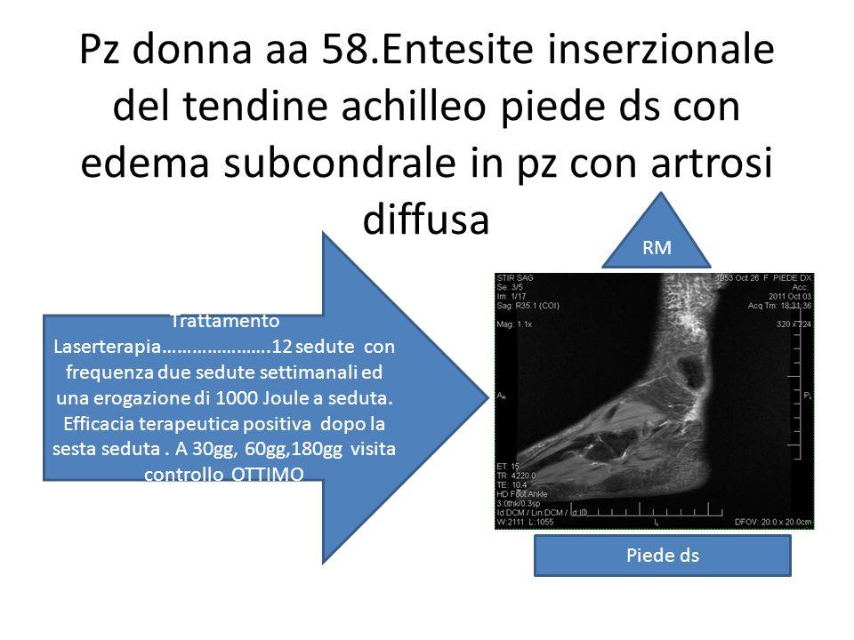 Pz donna aa 58.Entesite inserzionale del tendine achilleo piede ds con edema subcondrale in pz con artrosi diffusa