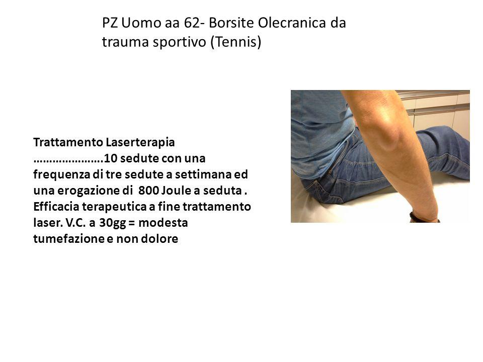 PZ Uomo aa 62- Borsite Olecranica da trauma sportivo (Tennis)