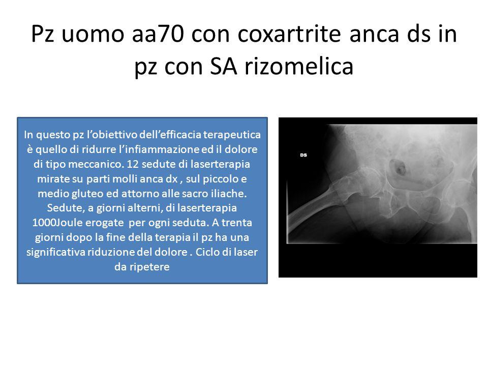 Pz uomo aa70 con coxartrite anca ds in pz con SA rizomelica