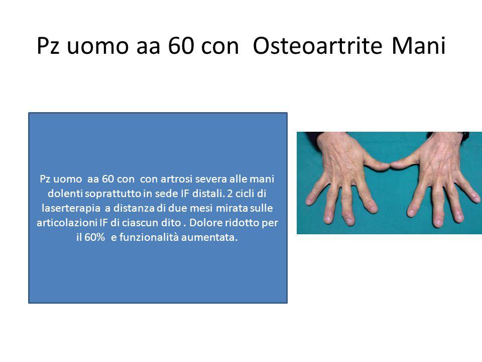 Pz uomo aa 60 con Osteoartrite Mani