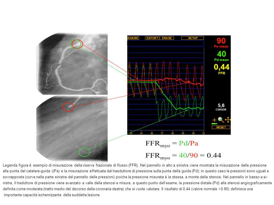 Legenda figura 4: esempio di misurazione della riserva frazionale di flusso (FFR). Nel pannello in alto a sinistra viene mostrata la misurazione delle pressione