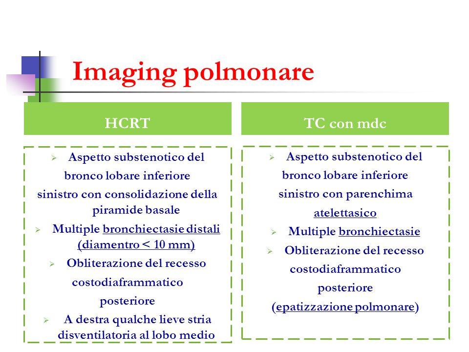 Imaging polmonare HCRT TC con mdc Aspetto substenotico del