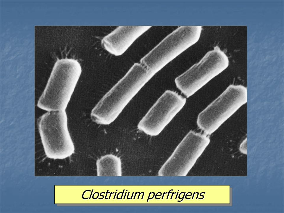 Clostridium perfrigens